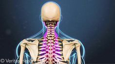 Stiff neck: Find out what is causing a stiff neck based on the symptoms you have and then what should be done to remedy the situation.