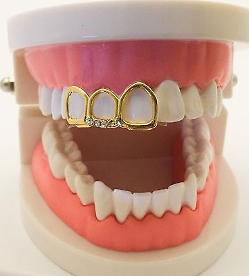 14K Gold Plated Mouth Grills Grillz Cap - Open Face covers 3 Teeth
