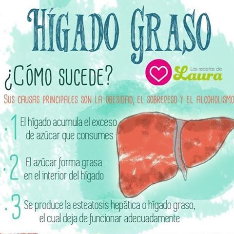 1000 images about salud en infograf as on pinterest cancer diabetes and cordoba - Alimentos para el higado graso ...