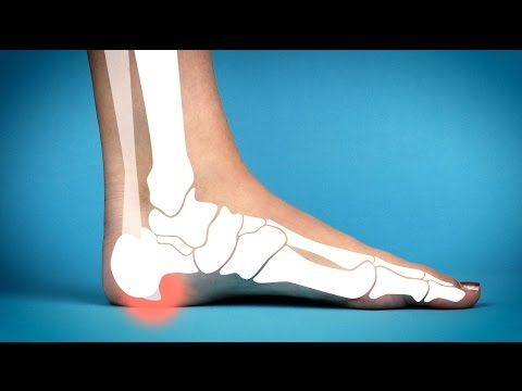 1 Minute Plantar Fascia Heel Spur *HOME Treatment* - YouTube