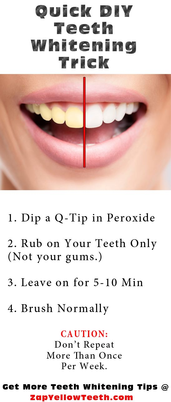 Brighten yellow teeth quickly with a little dab of hydrogen peroxide.
