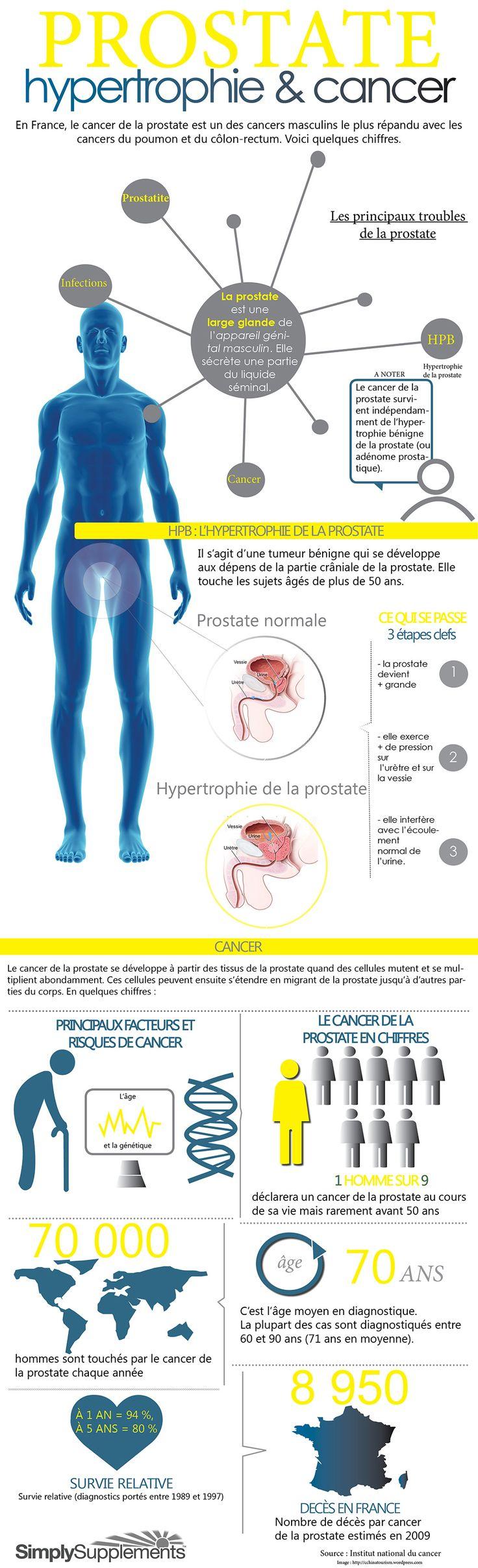 Prostate : L'infographie qui met des chiffres sur les maladies qui la touche http://goo.gl/fLhcKo