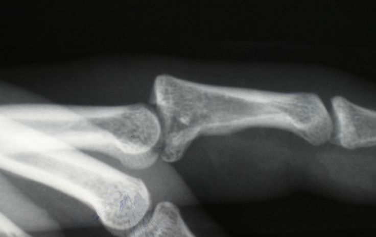 15 Best Images About Trimalleolar Fracture On Pinterest. Child Custody Nebraska Cheap Cable Television. Naomi Campbell Hair Loss Mailing List Vendors. St John Neumann Sunbury Mesh Wireless Network. Portland State University Masters Programs. University Of Northern Colorado Business School Ranking. Business Cards In Houston 5 Star Hotels Milan. Storage Pod Rental Rates Course In Accounting. University Of Cape Coast Kirkland Dental Care