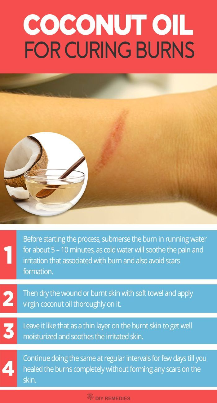 Is Coconut Oil good for Burns? Yes, of course it works well for treating burns and it is mostly commonly used as a topical treatment for burns in most of the coconut cultivated countries. Method – 1: (Coconut Oil) This process uses coconut oil alone for http://www.scarrcreams.com/different-scar-types/