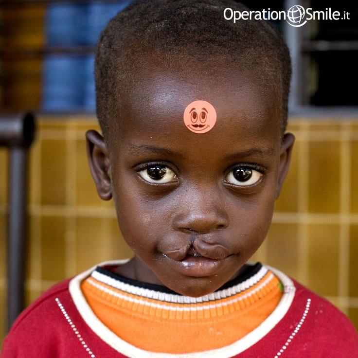 Sifa è stata operata a #Kigali, lo scorso febbraio. In #Ruanda 85 bambini come lei aspettano ancora di vederci tornare. Siamo la loro unica speranza e per aiutarli abbiamo bisogno di te!  Basta poco