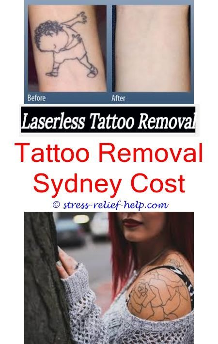 Tattoo removal birmingham.Full tattoo removal.How to do salabrasion ...
