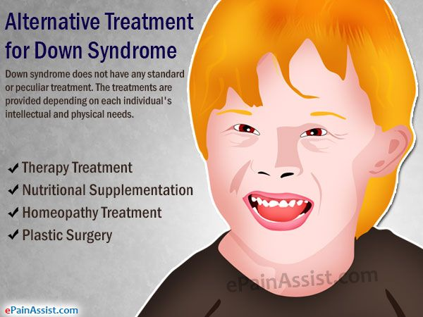 Alternative Treatment for Down Syndrome Read: http://www.epainassist.com/alternative-therapy/alternative-treatment-for-down-syndrome