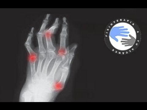 Artrosis de manos, ejercicios para aliviar el dolor / Fisioterapia a tu alcance