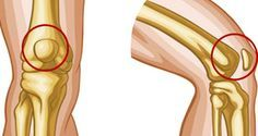 8 Exercices simples contre les douleurs aux genoux