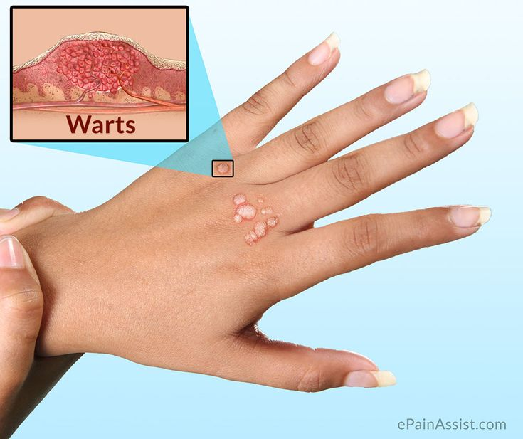 Natural Cure For Small Warts