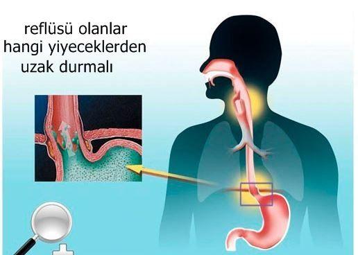 Reflü, birçok insanın hayatını zehir eden bir hastalıktır. En basit anlatımla reflü, mide içeriğinin yemek borusuna geri kaçması olarak tanımlanabilir. Erişkin kişelirin yüzde 20'sinde reflü hastalığı görülür. Safra sıvısı, asit ve pankreas sıvısı reflü nedeniyle yemek borusuna geri kaçar. Bu nedenle yemek borusunda yanma ve tahriş oluşur. Yemek borusu zamanla mide içeriğinden kendini koruyamaz hale gelir. Yemek borusunun alt kısmında bulunan kapak mide içeriğinin yemek borusuna geri…