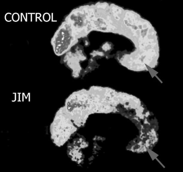 Compared to a control brain (top), neuroscientist James Fallon's brain (bottom) shows significantly decreased activity in areas of the frontal lobe linked to empathy and morality—anatomical patterns that have been linked with psychopathic behavior. Image via James Fallon One afternoon in October 2005, neuroscientist James Fallon was looking at brain scans of serial killers. As part of a research project at UC Irvine, he was sifting through thousands of PET scans to find anatomical patterns…