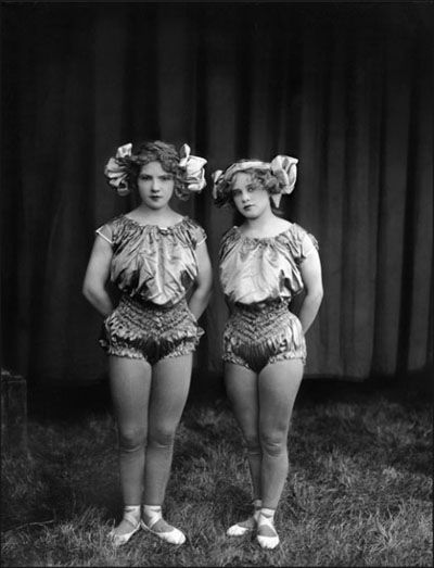 "Haunting legacies:  Twins as perverse oddities- as bodies of cultural obsession and medical/psychological/scientific institutional fascination    lookuplookup:    (The ""Iron Jaw"" Kimball twins. Photographed by Frederick W. Glasier in the 1920s.)"