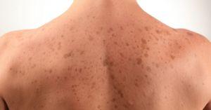 How to Treat Sun Spots #skin health #skin care #dermatology
