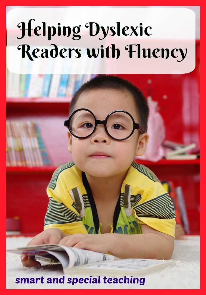 Here are some great dyslexia activities and strategies to help struggling readers with visual memory.