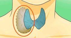Voici des façons simples et naturelles pour traiter votre glande thyroïde vous même sans médicaments avec effets secondaires.