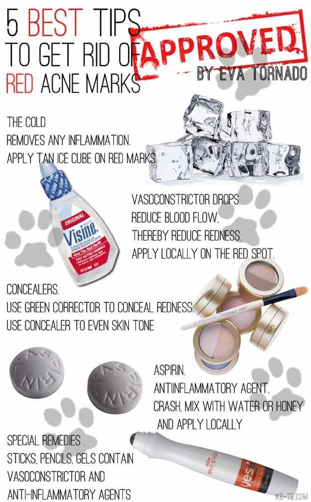 Acne Tips and Tricks - How To Get Rid of Red Acne Marks - Acne Hacks That Work With Tips And Tricks On How To Cover Up Acne Bumps And How To Cover Up Acne Scars With Makeup and Without Make Up. Life Hacks And Pimple Hacks For Overnight Treatment With Idea #acnetipspimplesovernight