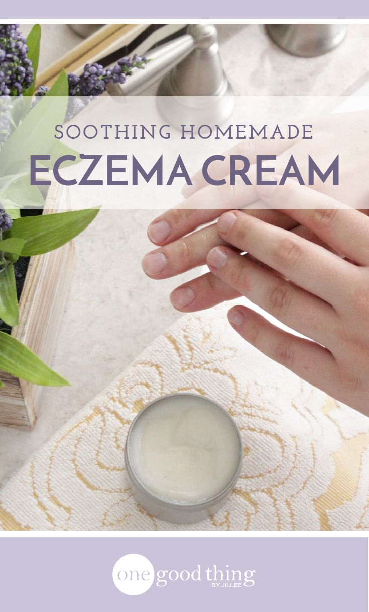 Eczema can be itchy, annoying, and painful! Make this easy and all-natural eczema cream to help moisturize and calm your irritated skin.