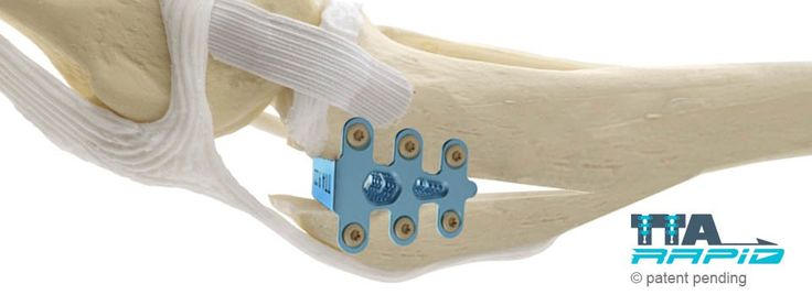 3D Systems' 3D Printed Titanium Implants Relieve Cruciate Ligament Conditions in Over 10,000 Dogs