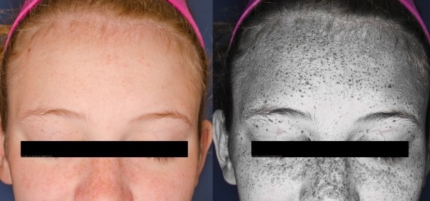 sun effects on skin thesis The effects of sun on the skin sunlight has a profound effect on the skin that can result in the premature aging, skin cancer.