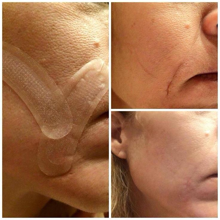 Our acute care fills In expression lines and also scars. Fill it in while you sleep, no needle required. Tenayacalhoun.myrandf.com