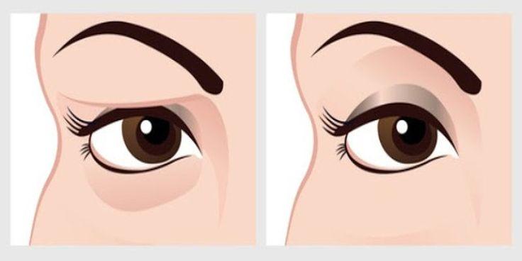 Naturalny środek na opadające powieki - wyniki zauważysz już po 2 minutach!