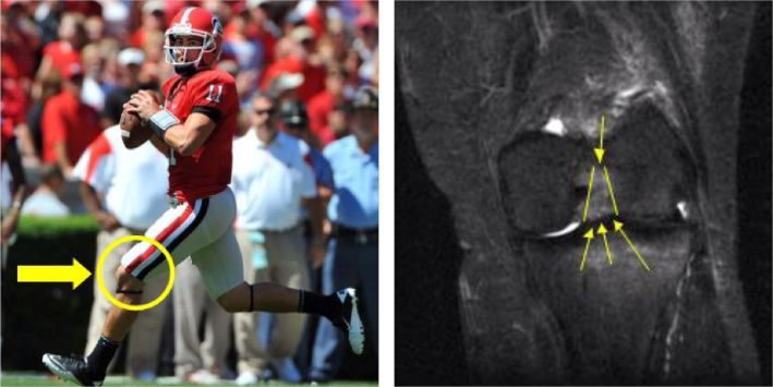 #UGA Quarterback #AaronMurray was picked up in the 5th round of the #NFLDraft by the Kansas City #Chiefs. Murray endured an ACL tear that ended his last season with the #Bulldogs, but has received full medical clearance as he enters the #NFL. Learn more about #ACL #injuries at http://insideinjuries.com/category/aclmcllcl/. #injuredplayer