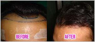 Looking for Best Hair Tranplantation Surgeon in Bangalore. Details: http://www.thenewyouclinic.com/
