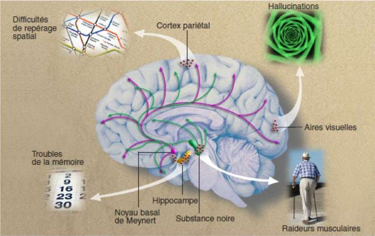 La maladie des corps de Lewy détruit en priorité les neurones de la substance noire et du noyau basal de Meynert. La substance noire irrigue les circuits moteurs du cerveau en dopamine (flèches vertes) ; le noyau basal de Meynert fournit de l'acétylcholine (flèches roses) à l'hippocampe (plaque tournante de la mémoire) et au néocortex qui assure l'ensemble des fonctions cognitives. Quand les corps de Lewy (points rouges) sont localisés dans l'hippocampe, ils provoquent des troubles de la…