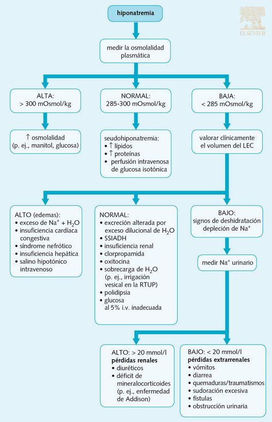 Algorítmo diagnóstico de la hiponatremia.