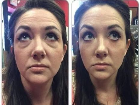 How to remove under eye-bags without surgery? #eyebags, #removeeyebags, #surgery, #wrinkles