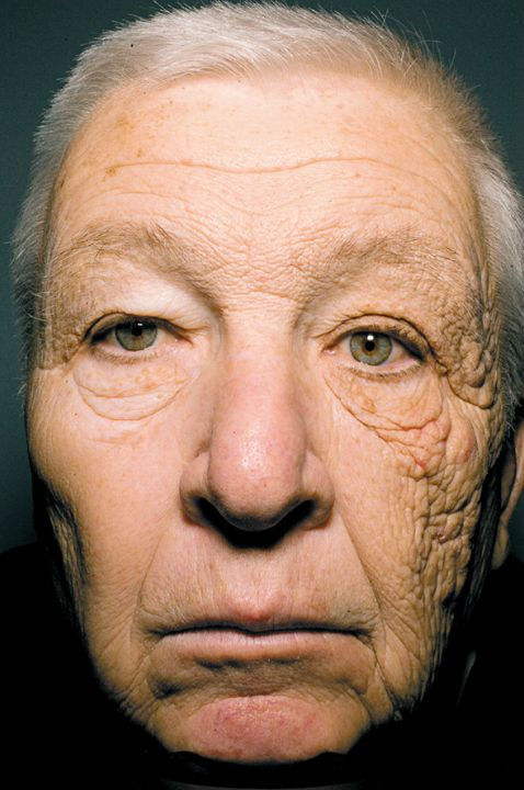 Why you should wear sunscreen