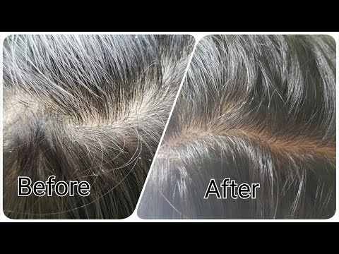Remove Dandruff in just 1 wash using super effective home remedy -  CLICK HERE for The No. 1 Itchy Scalp, Dandruff, Dry Flaky Sore Scalp, Scalp Psoriasis Book! #dandruff #scalp #psoriasis Super effective home remedy to get rid of Dandruff in just 1 wash In this video, I will be sharing with you How you can get rid of dandruff at home in just one wash. This... - #Dandruff