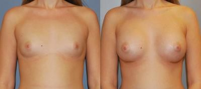 Reduce the size of your huge breasts through breast reduction surgery. Our team of expert surgeons will provide you with the effective assistance and services to get your needs fulfilled and to make you optimally satisfied. Browse our website for more information.