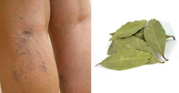 Cure varizes, alivie cansaço nas pernas e estimule circulação com este tratamento caseiro com louro - Receitas e Dicas Caseira