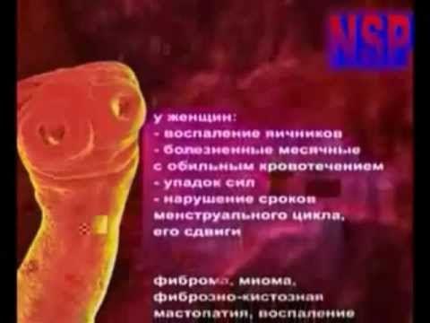 Pasożyty są wewnątrz nas cz. 3/3 Lektor PL Higiena - YouTube