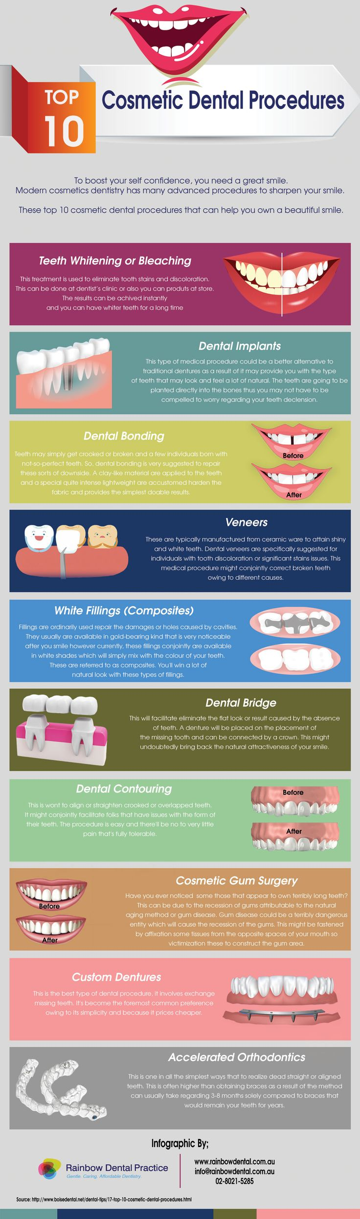 This #infographic shows top 10 foremost common cosmetic dental procedures that may assist you own that stunning smile.