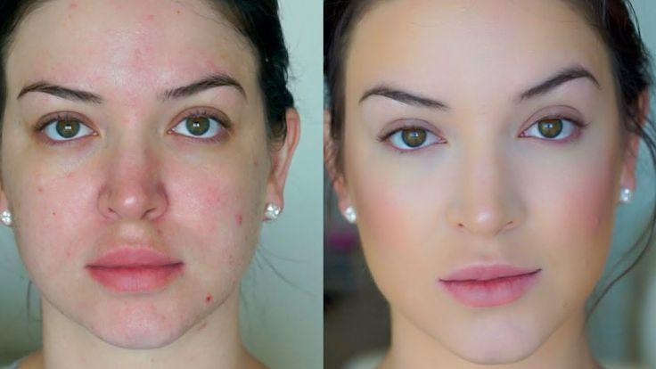 Foundation for bad skin days ♡ QUICK & EASY