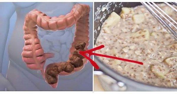 Smrť začína v hrubom čreve. Liečivá domáca zmes, ktorá odstráni všetky toxíny z hrubého čreva. - Rady pre ŽENY