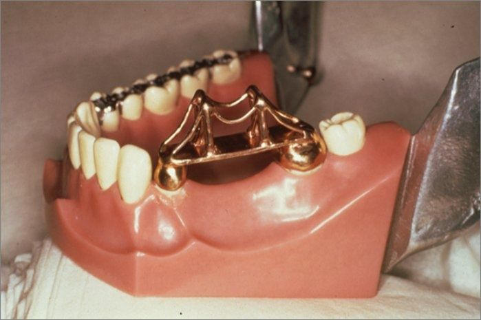 Мосты на зубы в картинках