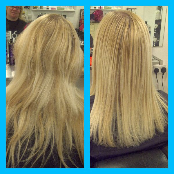 Permanent Straightening Before & After