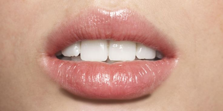 What Your Lips Say About Your Health - Dry Lips, Canker Sores, and More