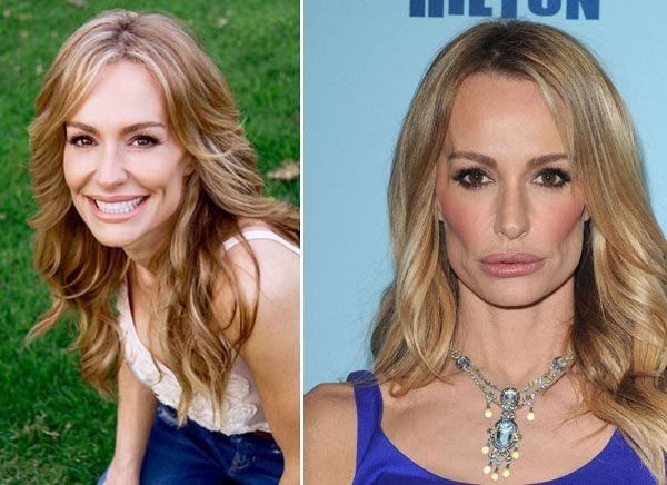 Taylor Armstrong Before Plastic Surgery Was The Best One ...