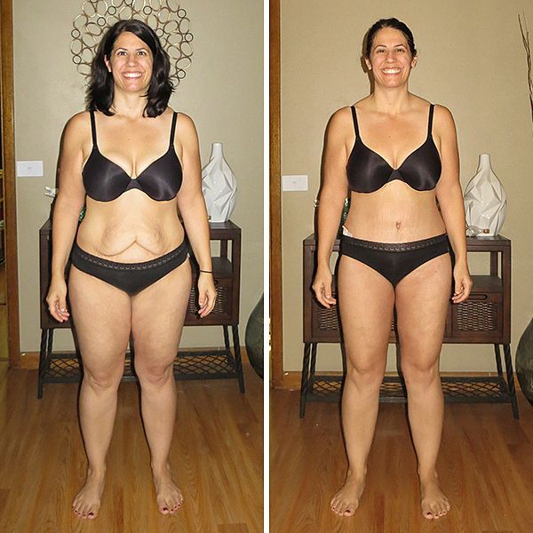 Extreme Weight Loss Skin 120 best images about ...