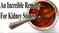 Kidney stones can be as little as a grain of sand or bigger than a pearl. Learm an incredible remedy or dissolving kidney stones. http://www.extremenaturalhealthnews.com/an-incredible-remedy-for-kidney-stones/