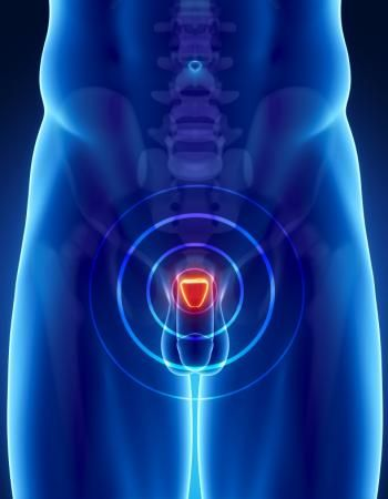 Enlarged Prostate: Molecular mechanism clue may explain link to inflammation.