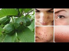 La Salud Ante Todo.: Las hojas que sirven para vencer las arrugas, acné, manchas oscuras y alergias de la piel.