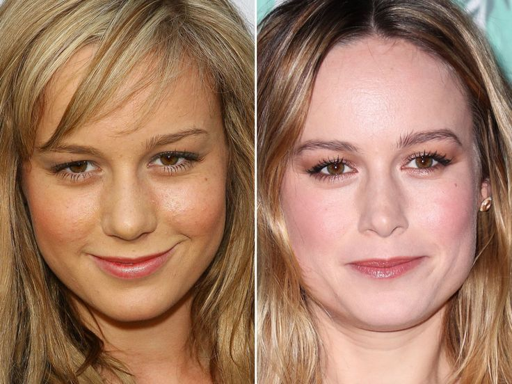 Brie larson before and after nose job jennifer aniston