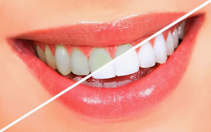 Top 4 Natural ways For Teeth Whitening ~ Life Tips And More !