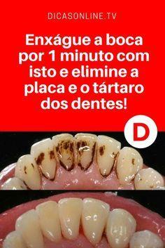 Clarear dentes em casa | Este simples tratamento caseiros elimine a placa e o tártaro dos dentes. E ainda é um ótimo clareamento dental. Aprenda ↓ ↓ ↓